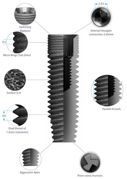 dental implants classic-details