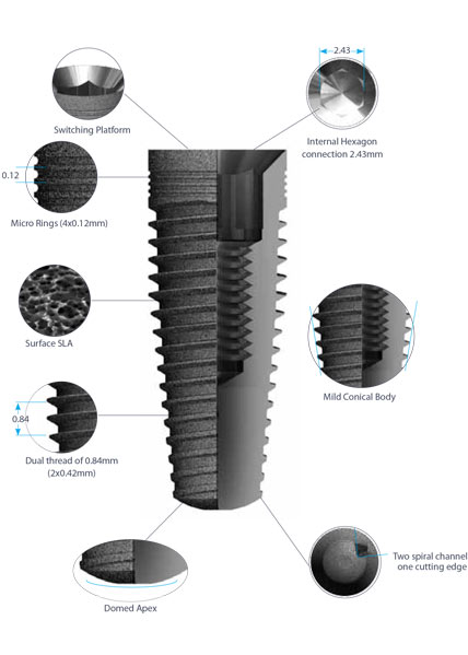 dental implants prestige-details